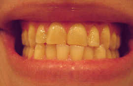 Bruxism - Habit of clenching and grinding teeth